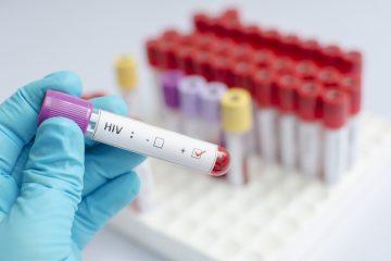 """Los tratamientos antirretrovíricos, recomendados actualmente para las infecciones por VIH, """"suprimen la réplica del virus y evita la progresión de la enfermedad"""" en el cuerpo, señalan los autores del estudio. (Dreamstime)"""