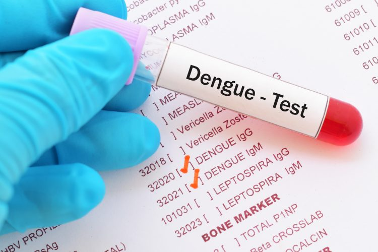 El documento indica que en las últimas cuatro semanas epidemiológicas (de la cinco a la ocho) se notificaron 338 casos probables de dengue, mientras que el año pasado se registraron 85 casos de la enfermedad. (Dreamstime)