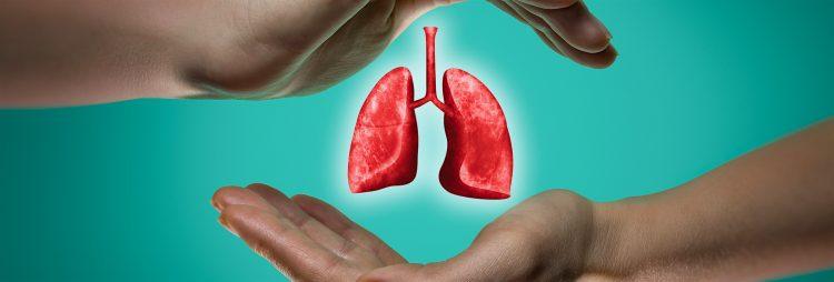 El estudio, denominado Caspian, ha contado con la participación de 209 instituciones de 23 países -diez españolas- y 537 pacientes con cáncer de pulmón microcítico avanzado que fueron divididos en tres grupos para seguir tratamientos diferentes. (Dreamstime)