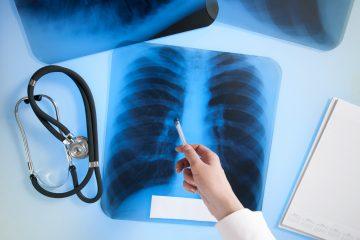 Un caso es el de Rosario Gaona, de 42 años, quien logró tener acceso a un tratamiento de este tipo luego de que fue diagnosticada con cáncer de pulmón en etapa IV. Fue sometida a pruebas genéticas que determinaron que era candidata. (Dreamstime)